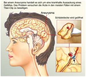Was ist ein Aneurysma?