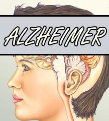 Alzheimer Ursachen und Symptome